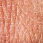 Làn da – Cơ quan lớn nhất của cơ thể