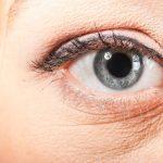 Những điều cần biết về chăm sóc da vùng mắt